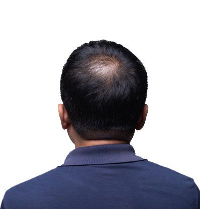 پیشگیری از ریزش مو,درمان ریزش مو,تقویت مو,ریزش مو,تونیک ضد ریزش موی بیز,تونیک بیز