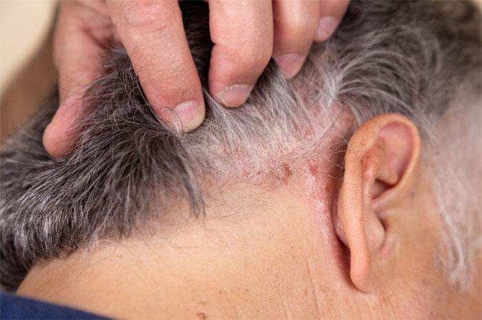 درمان سریع پسوریازیس با قارچ گانودرما,درمان سریع پسوزیاریس با قارچ گانودرما,درمان پسوریازیس,درمان پسوزیاریس,قهوه های گانودرما