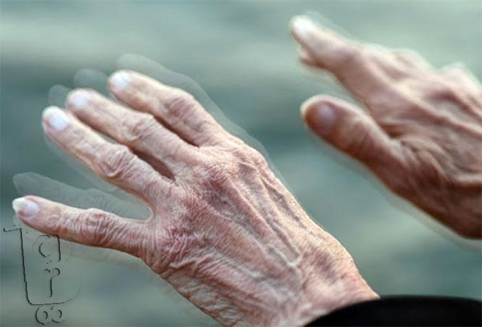 پیشگیری و بهبود پارکینسون,درمان پارکینسون,علایم پارکینسون,قهوه های گانودرما,پیشگیری