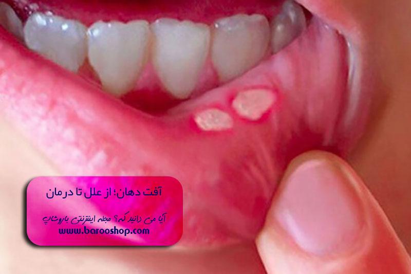 برای آفت دهان چه بخوریم،قطره آفت دهان،عکس آفت دهان،داروی خارجی برای آفت دهان، آیا آفت دهان خطرناک است؟،درمان آفت دهان با رب انار،درمان آفت دهان کودکان،درمان آفت دهان دکتر روازاده