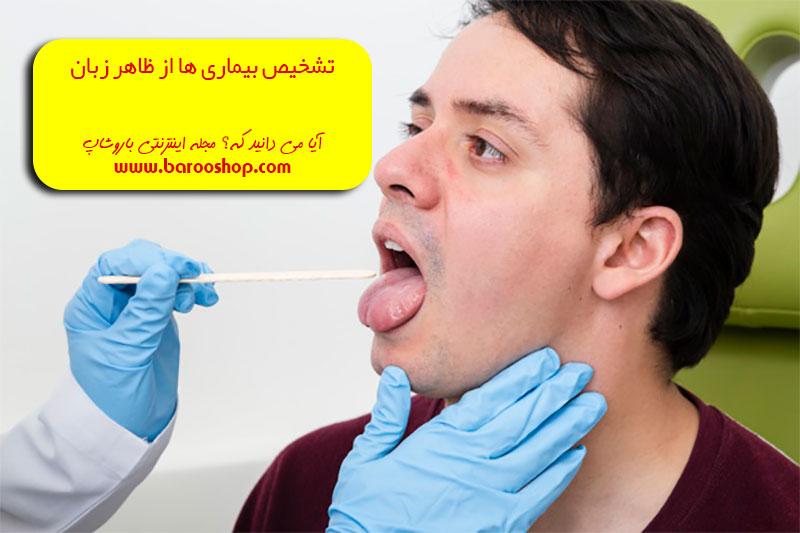 دانلود کتاب تشخیص بیماری از روی زبان،نرم افزار تشخیص بیماری از روی زبان،تشخیص بیماری از روی زبان خیراندیش،تشخیص کبد چرب از روی زبان،تشخیص مزاج از روی زبان در طب سنتی،دانلود رایگان کتاب تشخیص بیماری از روی زبان،تشخیص بیماری از روی چشم،تشخیص بیماری قلبی از روی زبان