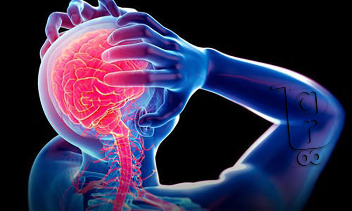 علائم میگرن چشمی،میگرن عصبی چه علائمی دارد،علائم میگرن مزمن،علائم میگرن معده،علائم میگرن قاعدگی،تشخیص میگرن،خطرات میگرن،قرص میگرن عصبی