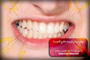 درمان دندان قروچه در طب سنتی، درمان دندان قروچه در کودکان، درمان دندان قروچه دکتر تبریزیان، درمان دندان قروچه دکتر روازاده، درمان دندان قروچه نی نی سایت، درمان گیاهی دندان قروچه، روانشناسی دندان قروچه، قرص برای درمان دندان قروچه