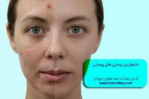 بیماریهای پوستی دست،بیماریهای پوستی پا،بیماری پوستی پسوریازیس،بیماری پوستی lsa، درمان بیماری پوست،شایع ترین بیماری پوستی در تهران،بیماری پوستی روی دست،پیشگیری از بیماری های پوستی