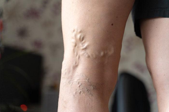 روغن برای درمان واریس،درمان واریس با یخ،درمان واریس پا با ورزش،درمان واریس پا با لیزر،معجزه درمان واریس،درمان واریس پا با زالو،درمان واریس پا با حجامت،درمان واریس با سیاه دانه