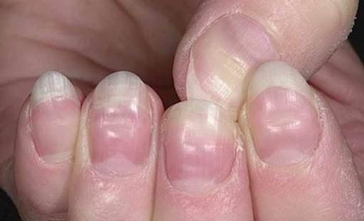 تشخیص بیماری از روی ناخن در طب سنتی،تشخیص بیماری از روی ناخن پا،تشخیص بیماری ریه از روی ناخن،بیماری ناخن،عکس ناخن ایدزی،تشخیص بیماری از روی کف دست،شیارهای عمودی روی ناخن،رنگ ناخن بیماری
