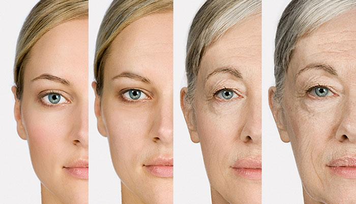 علت افتادگی پوست صورت چیست، شل شدن پوست صورت، درمان افتادگی پوست صورت، تاثیر لاغری در افتادگی پوست صورت، تاثیر سن در افتادگی پوست صورت، تاثیر لوازم آرایش در افتادگی پوست صورت