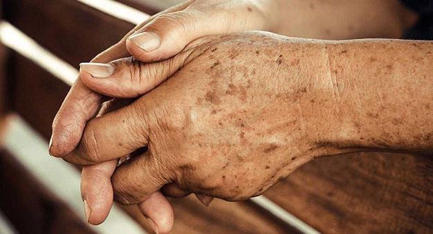 بیماری های پوستی کشنده،انواع بیماری های پوستی خارش دار،بیماری پوستی که شبیه سوختگی است،تصاویر انواع ضایعات پوستی،انواع بیماری خارشی پوست،درمان بیماری پوستی،عکس بیماری پوستی اگزما،انواع قارچ پوستی با عکس